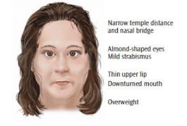 recognize prader willi syndrome dimensions of dental hygiene