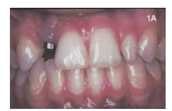 Clinical Signs of Peri-Implant Muscositis