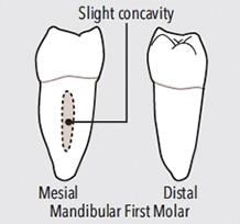 first-molar-teeth-figure-9