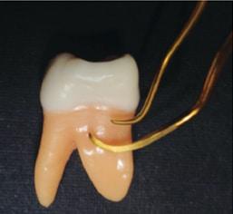 first-molar-teeth-figure-2-257