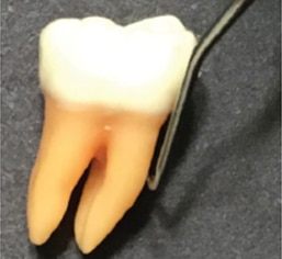 first-molar-teeth-figures-10-444