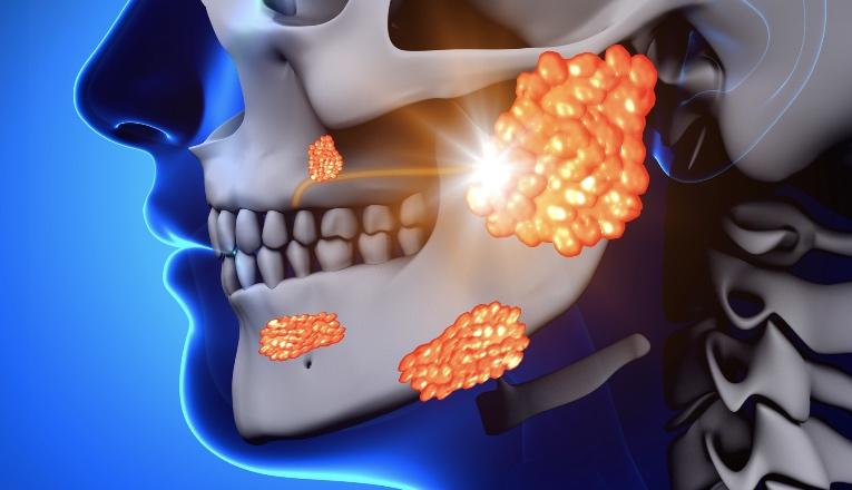 Mumps / Parotid Gland Sickness graphic