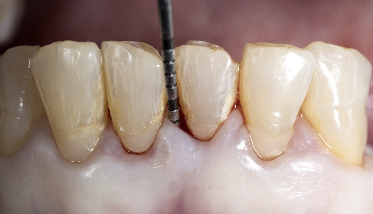 Periodontal probing is a clinical procedure that allows the clinician to estimate the structural status of the periodontal tissues by mechanically probing the gingival sulcus region. Probing depth allows the clinician to make certain assumptions about the state of health of the periodontium.