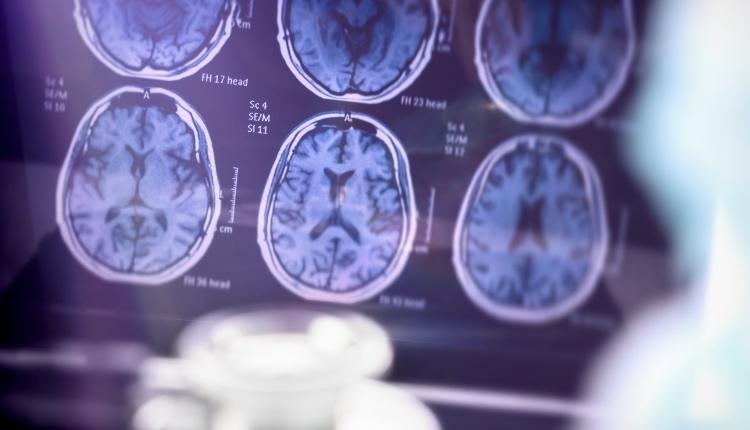 Scientific analysis of Alzheimer's disease in hospital