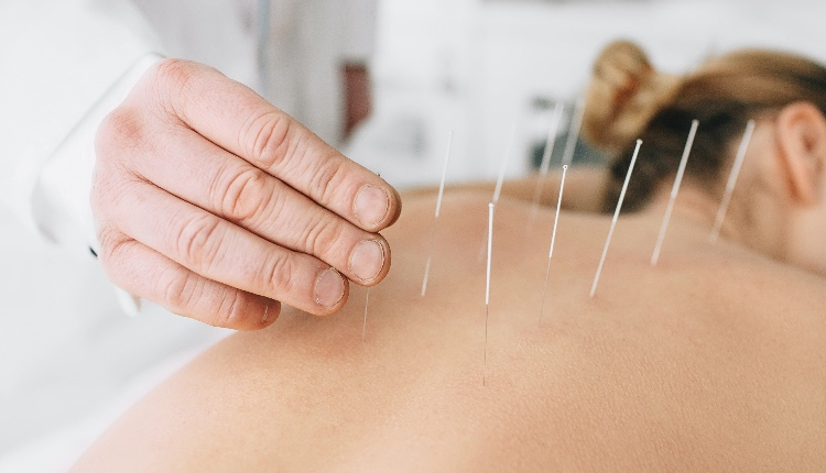 Woman having acupuncture treatment on her back
