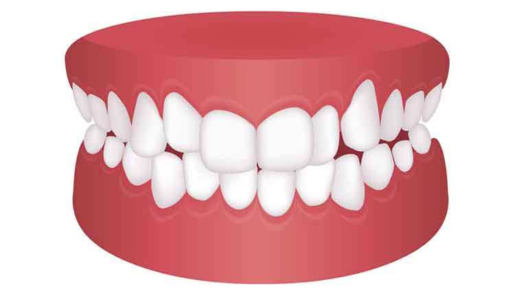 Teeth trouble ( bite type ) vector illustration /Crowding