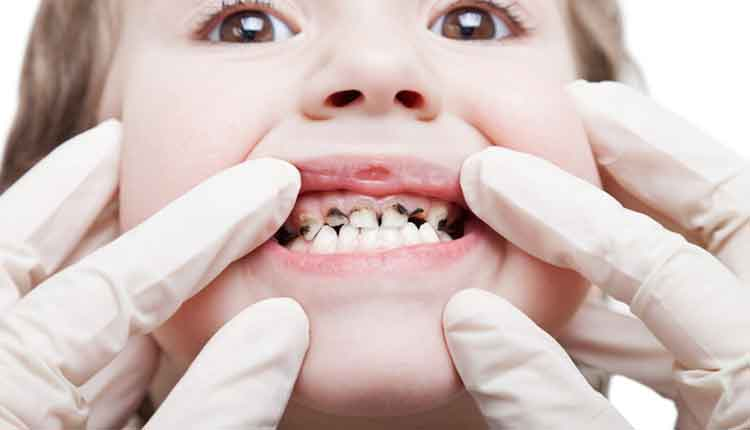 close up of child's teeth