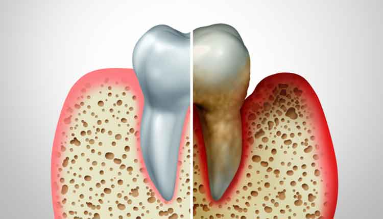 Gum disease comparison with a healthy tooth and an unhealthy one with periodontitis and poor oral hygiene health problem as a bacteria infection diagram concept with inflammation as a 3D illustration.